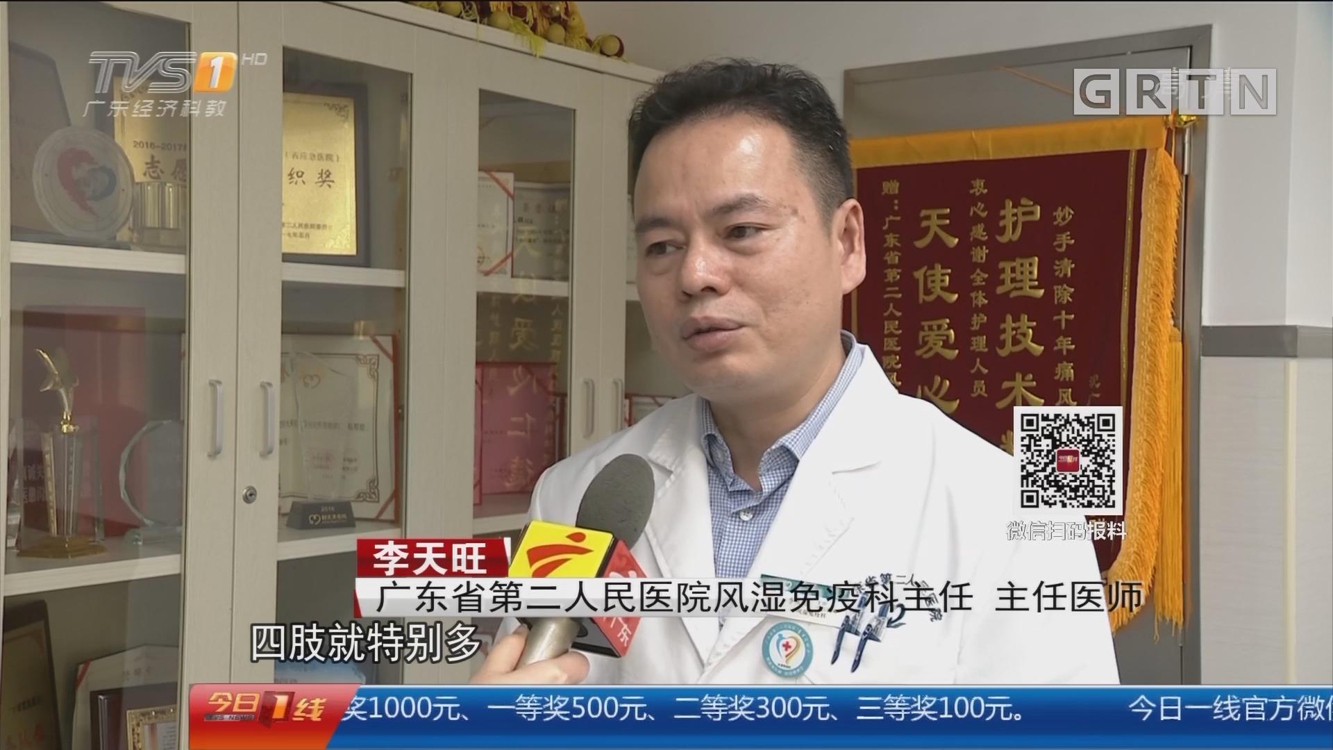 广州:24岁男子 浑身长满200多颗痛风石