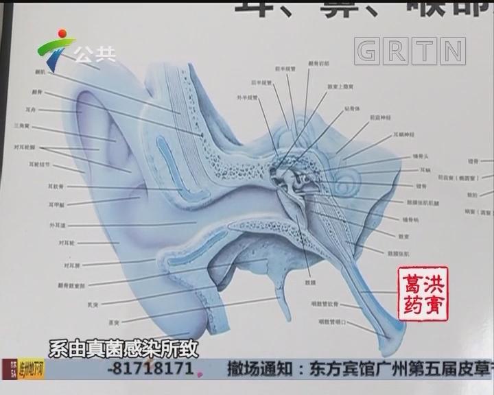 """中山:幼童患真菌性外耳道炎 只因""""爱干净"""""""