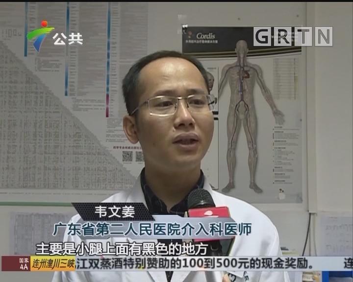 广州:女子听信偏方扎针放血 导致病情加重