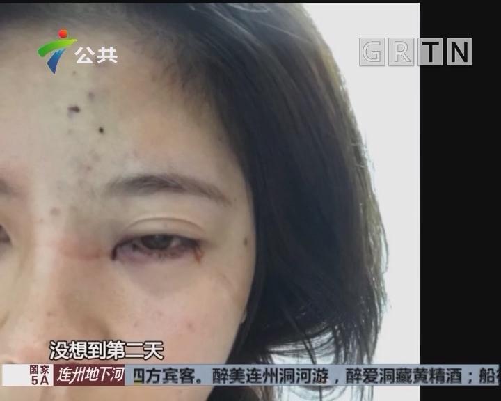 美女去微整工作室打玻尿酸 导致左眼睑严重下垂