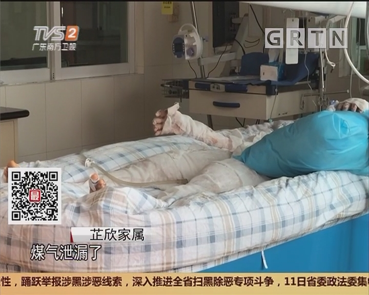 广州:17岁花季少女全身90%烧伤 仍处于危险期