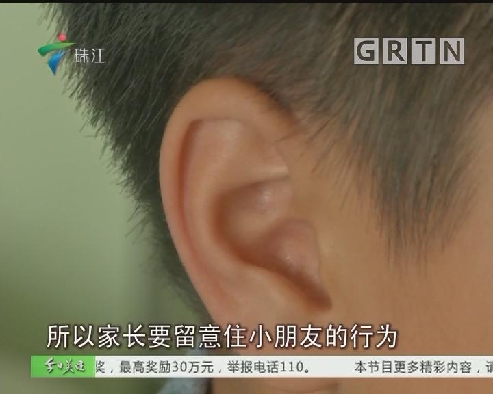 中山:9岁男童突发耳聋 诱因竟是侦探片?