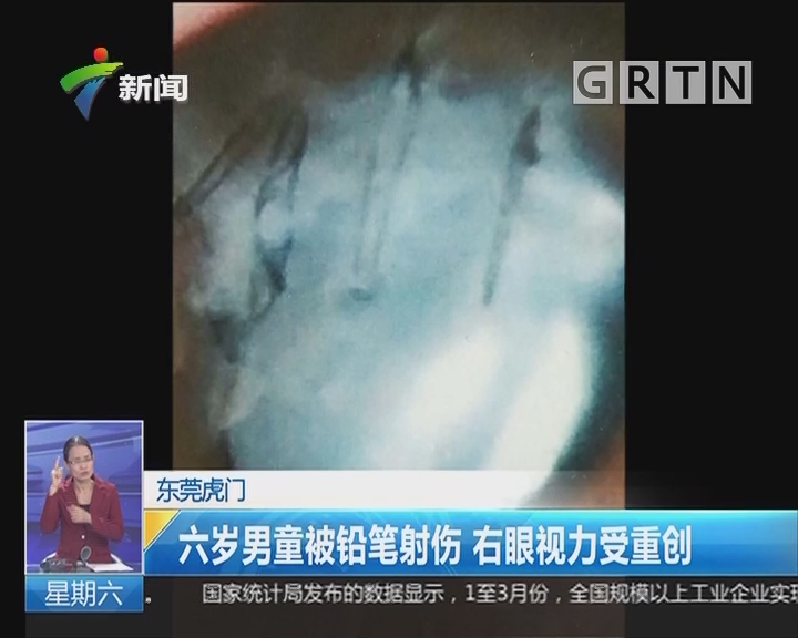 东莞虎门:六岁男童被铅笔射伤 右眼视力受重创