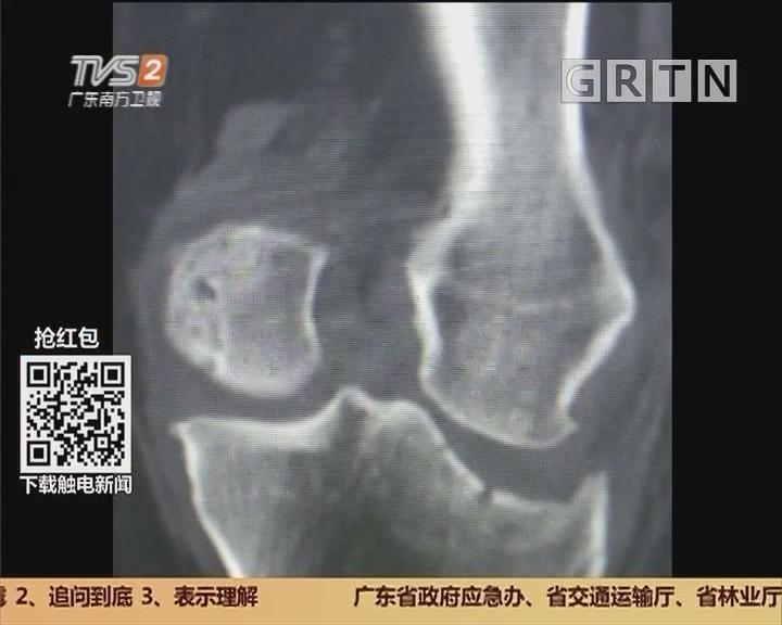 广州白云区:六旬老太烂路摔倒 致左膝骨折