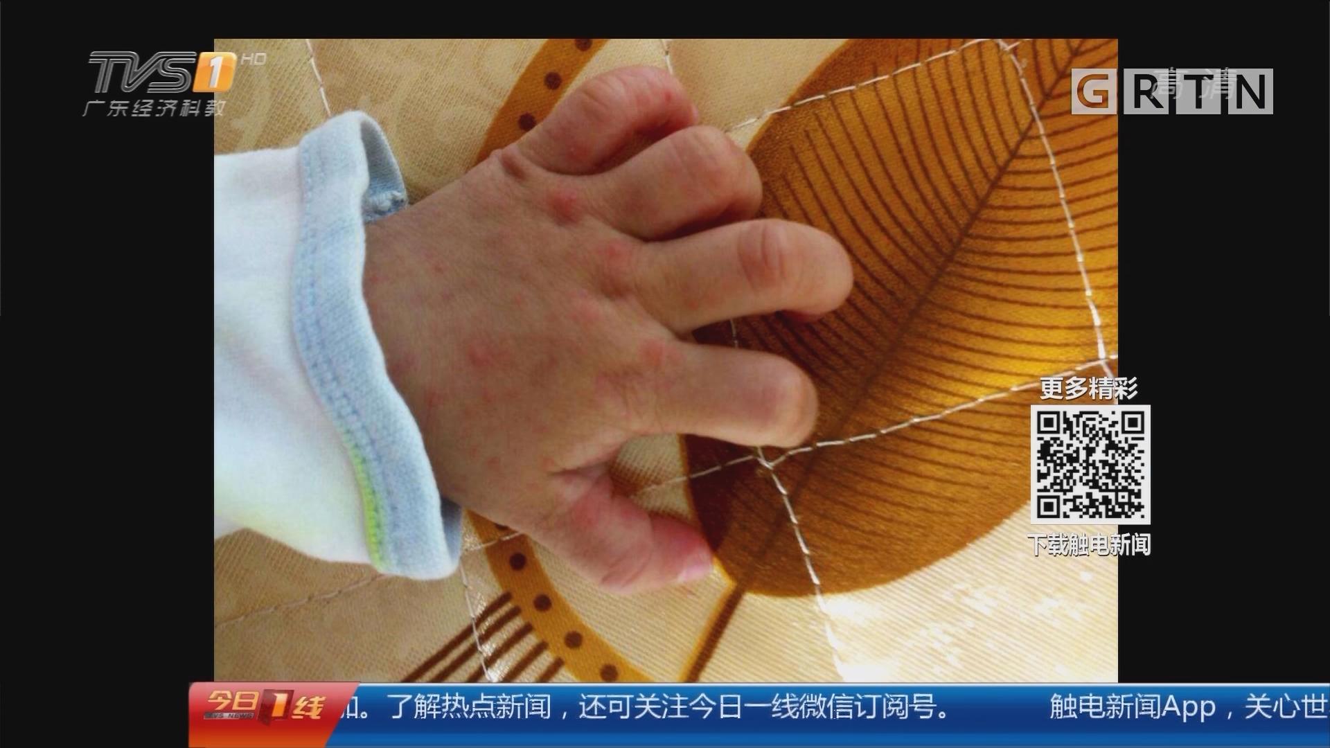 广州:预测四月底手足口病或现高峰