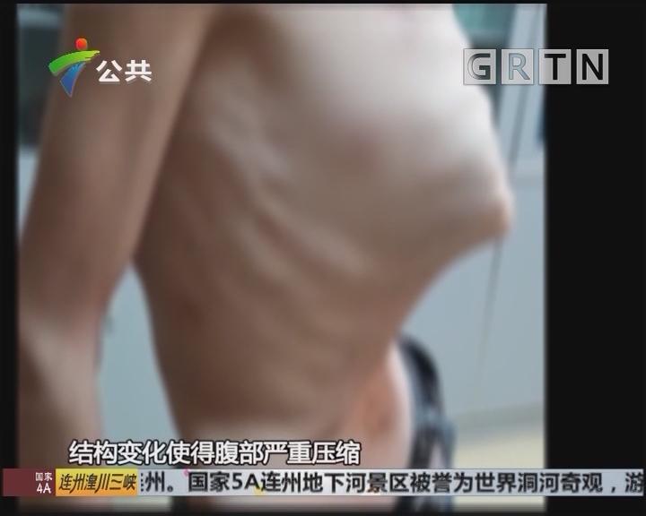 胸廓畸形致男子腰细如儿童 内脏被压迫移位