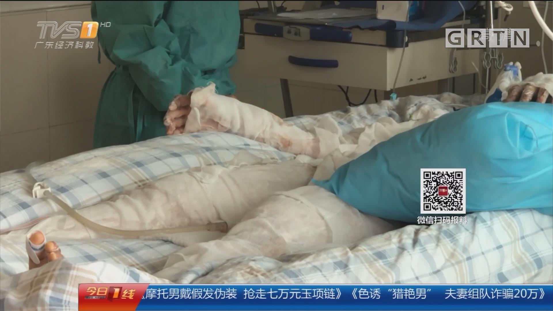 广州:高二女生9成皮肤烧伤 仍处于危险期