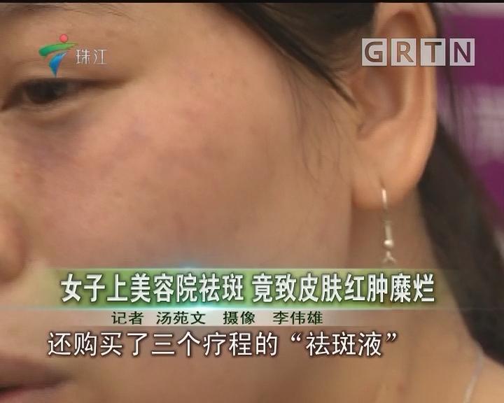 女子上美容院祛斑 竟致皮肤红肿糜烂