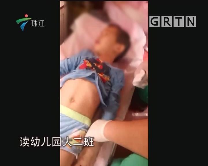 东莞:男童从幼儿园三楼楼顶坠下 受伤入院