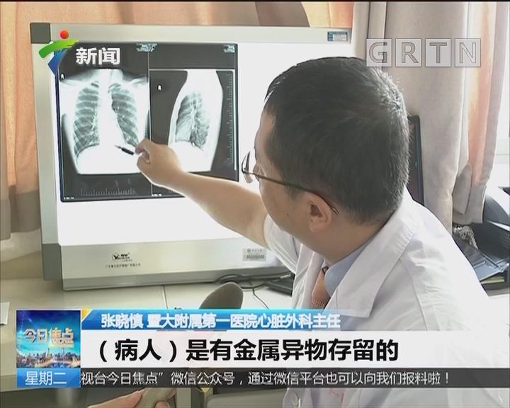 """广州:金属块""""穿膛"""" 医生手捧心脏缝合"""