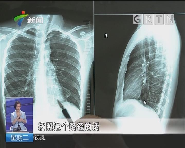 广州:重物坠落 砸出金属碎片击中胸膛