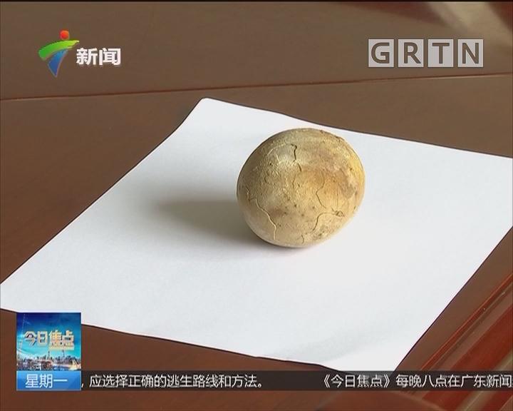 广州:排尿困难十余年 小结石变9公分巨石