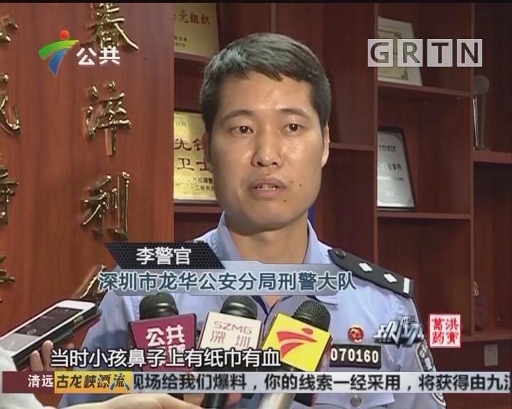 深圳:三岁男孩鼻血不止 警车鸣笛送院