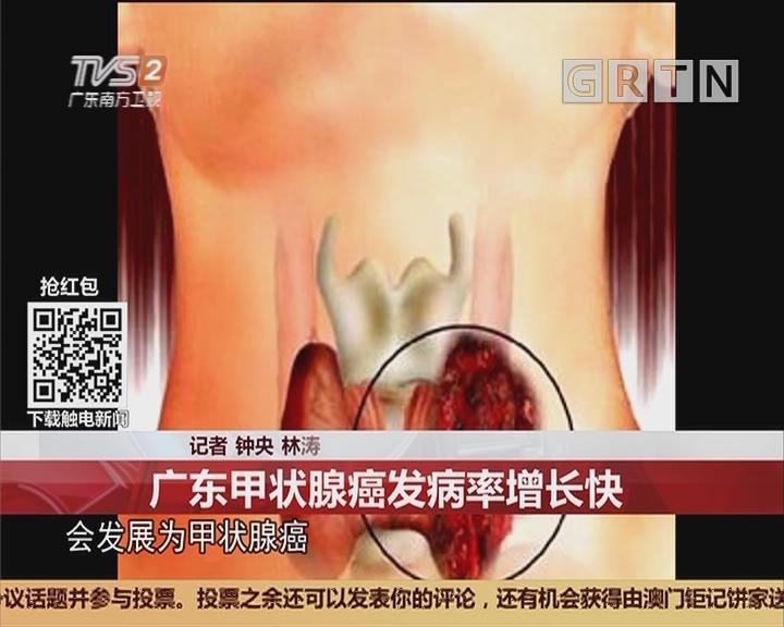 健康提示:广东甲状腺癌发病率增长快
