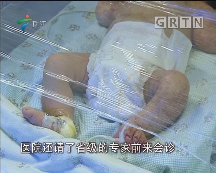 博罗:路边弃婴被蚂蚁咬伤 众人合力帮其渡难关