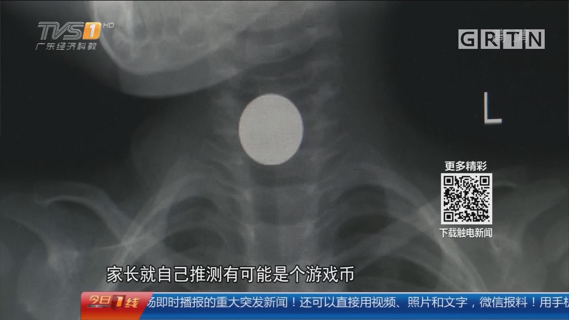 儿童安全提醒:东莞寮步 危险!2岁男童呕吐不止 竟是硬币卡喉