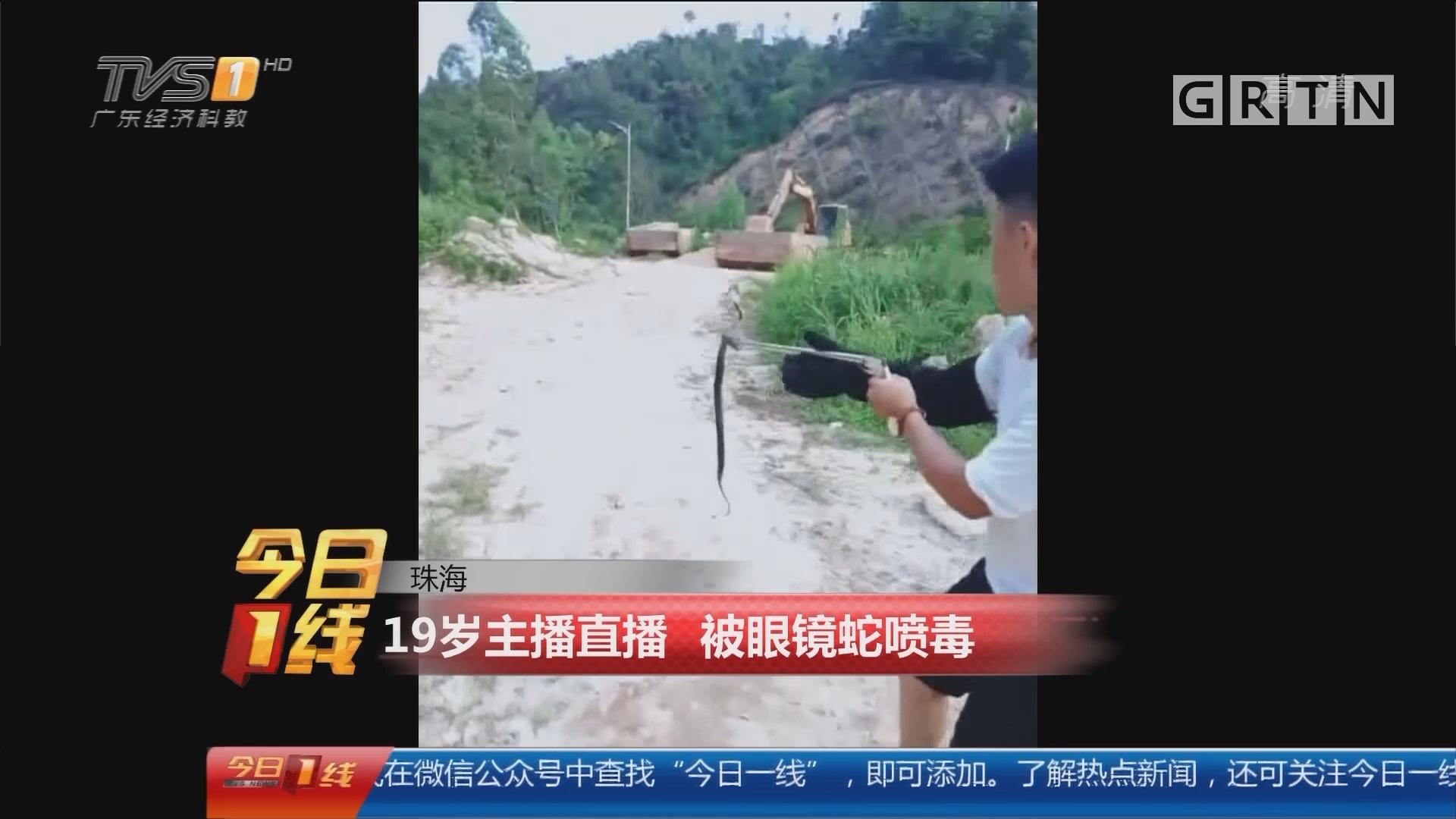 珠海:19岁主播直播 被眼镜蛇喷毒
