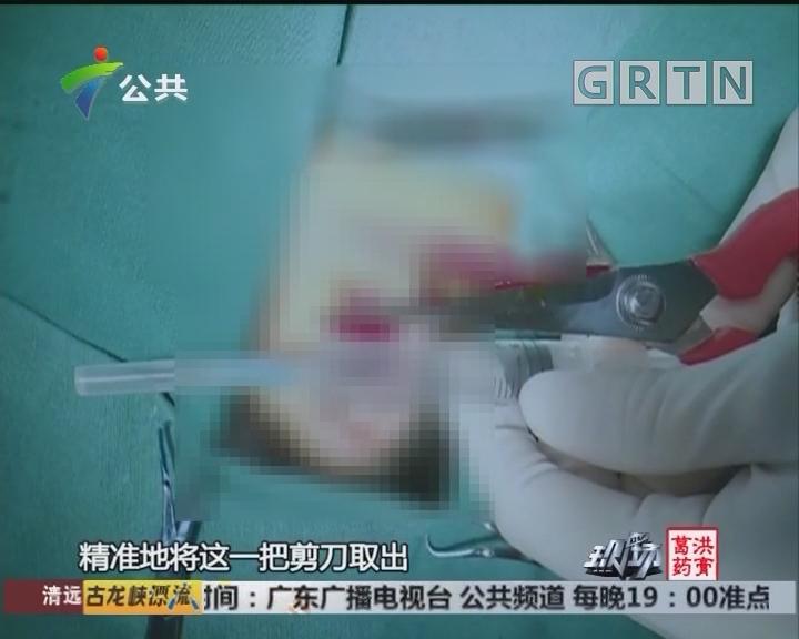 惠州:爬树摘剪荔枝 不慎被剪刀戳耳