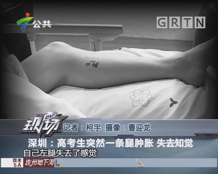 深圳:高考生突然一条腿肿胀 失去知觉