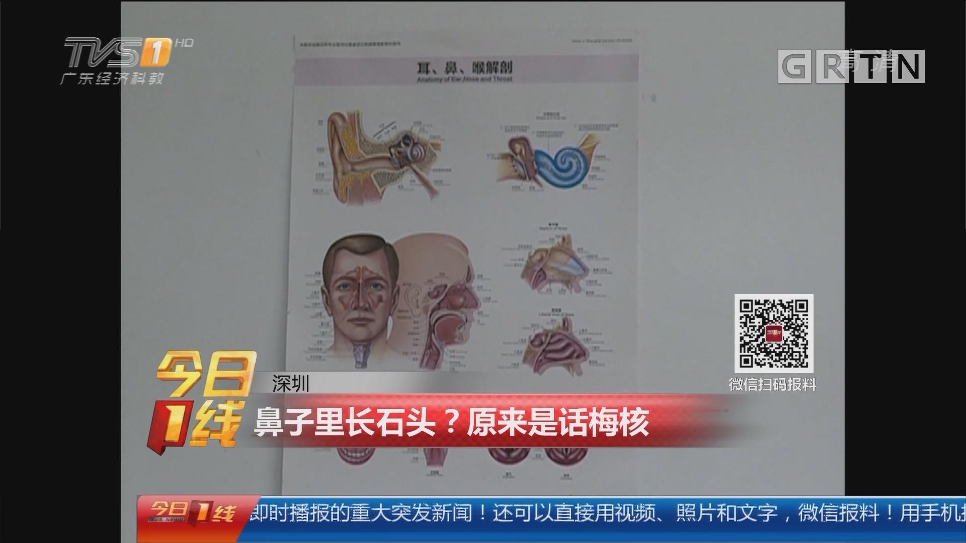 深圳:鼻子里长石头?原来是话梅核