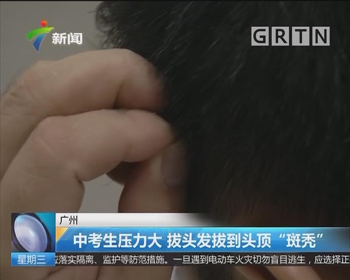 """广州:中考生压力大 拔头发拔到头顶""""斑秃"""""""