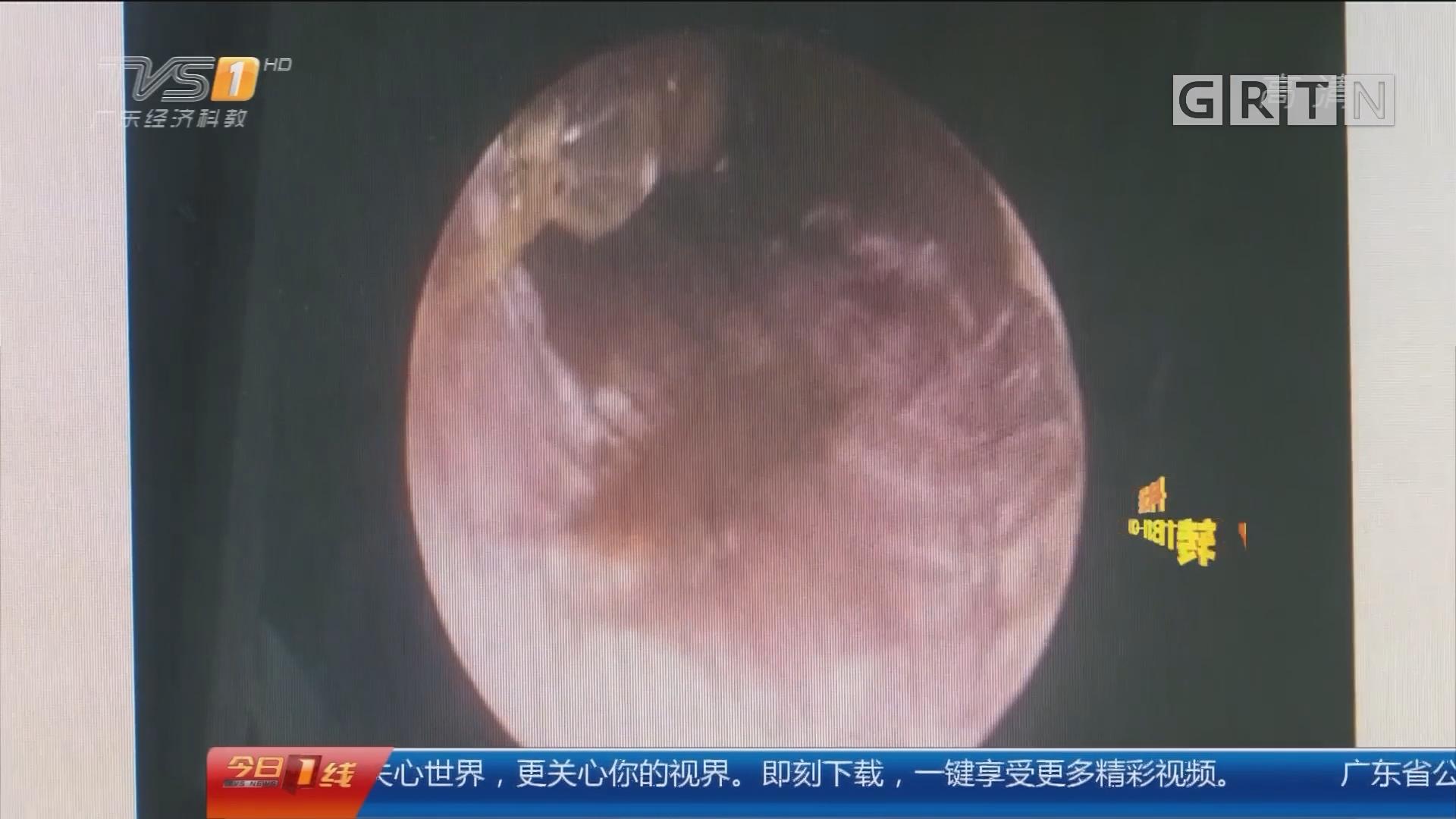 深圳:吓人!2厘米长蟑螂半夜爬入耳朵