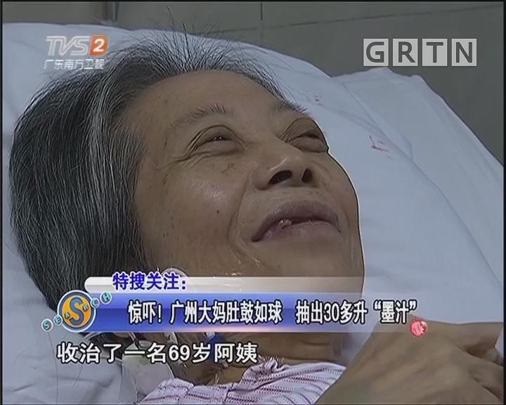"""惊吓!广州大妈肚鼓如球 抽出30多升""""墨汁"""""""