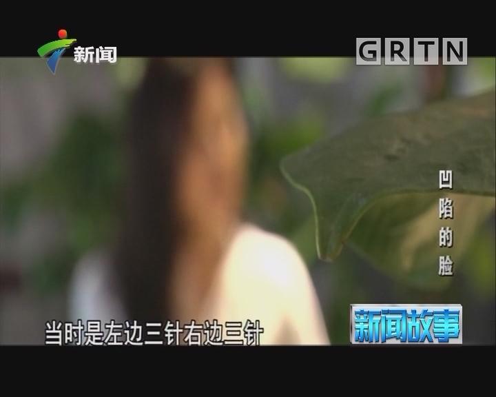 [2018-07-23]新闻故事:凹陷的脸