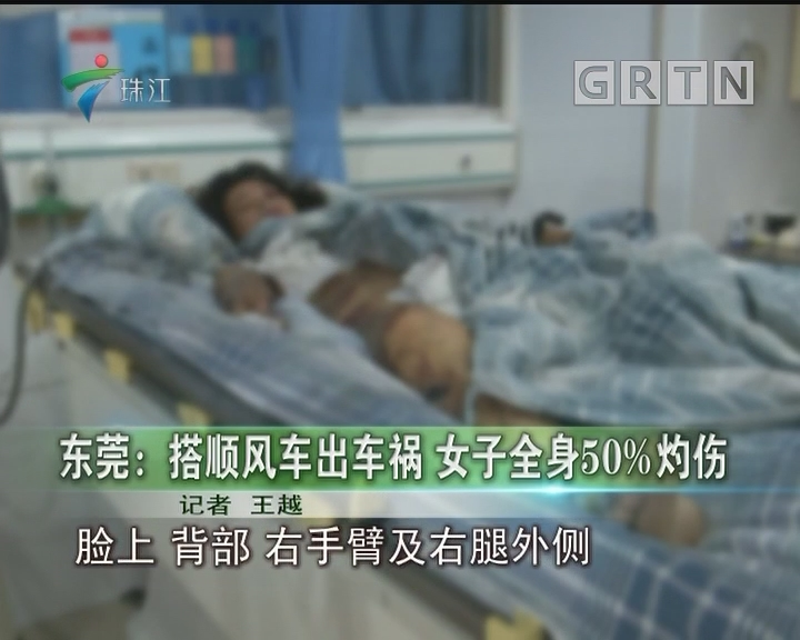 东莞:搭顺风车出车祸 女子全身50%灼伤