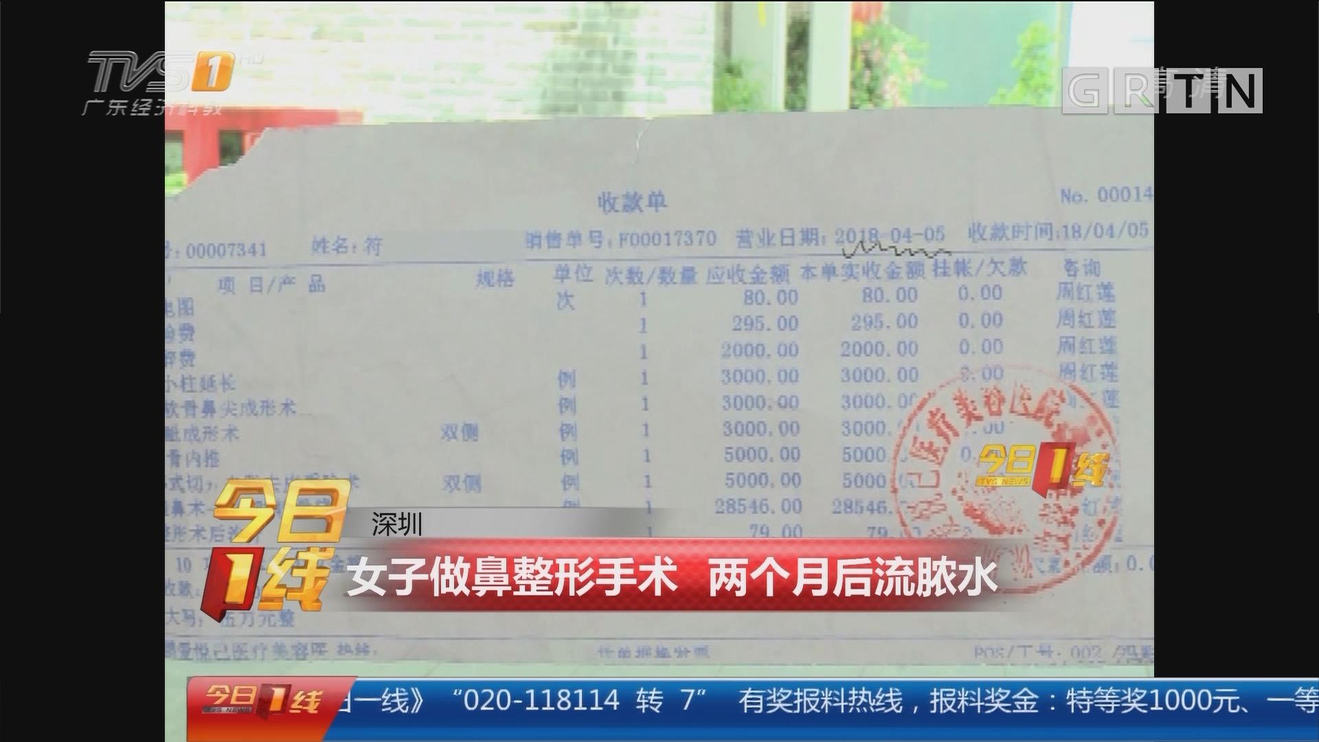 深圳:女子做鼻整形手术 两个月后流脓水