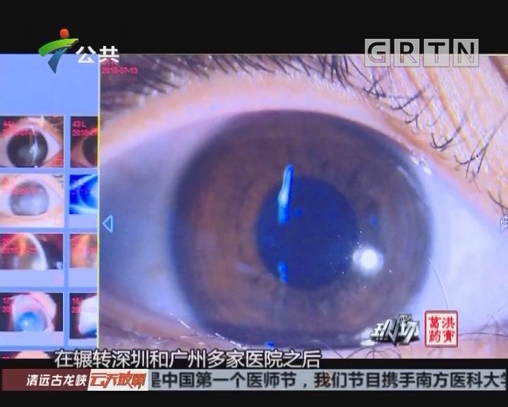女生网购隐形眼镜 感染寄生虫险致盲