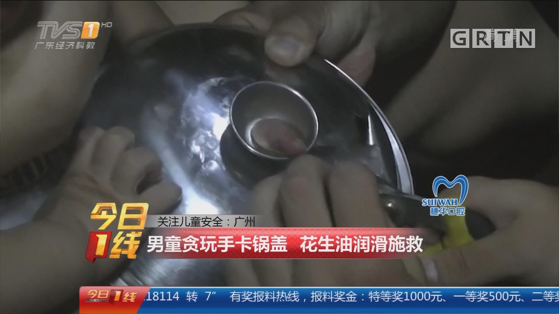 关注儿童安全:广州 男童贪玩手卡锅盖 花生油润滑施救