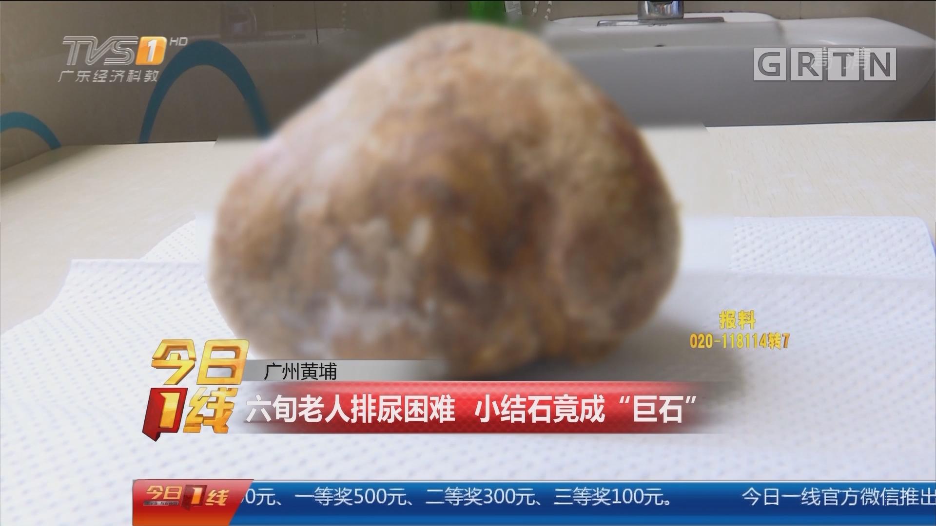 """广州黄埔:六旬老人排尿困难 小结石竟成""""巨石"""""""