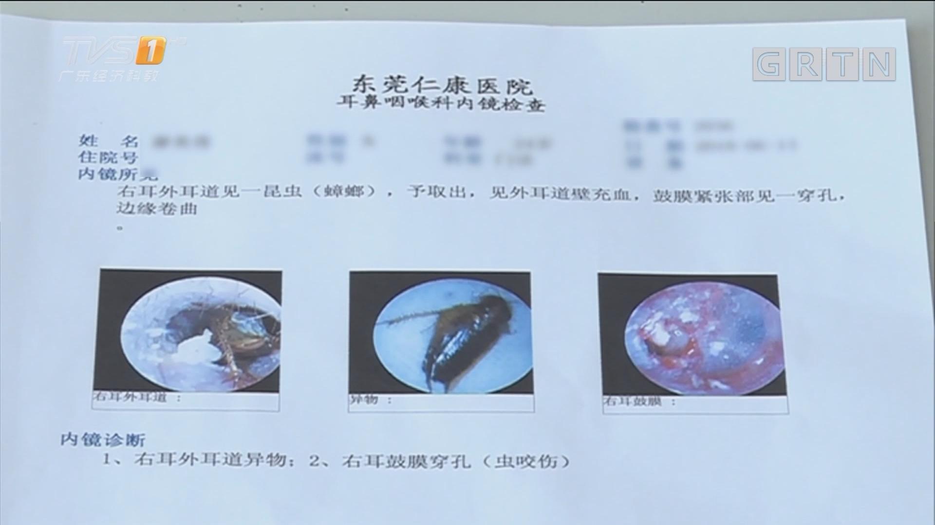 东莞厚街:女子蟑螂入耳两天求医 耳膜都被咬穿