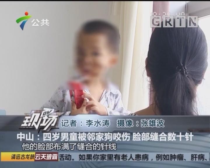 中山:四岁男童被邻家狗咬伤 脸部缝合数十针