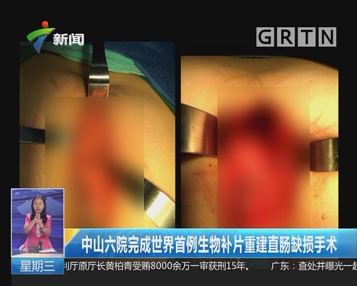 中山六院完成世界首例生物补片重建直肠缺损手术