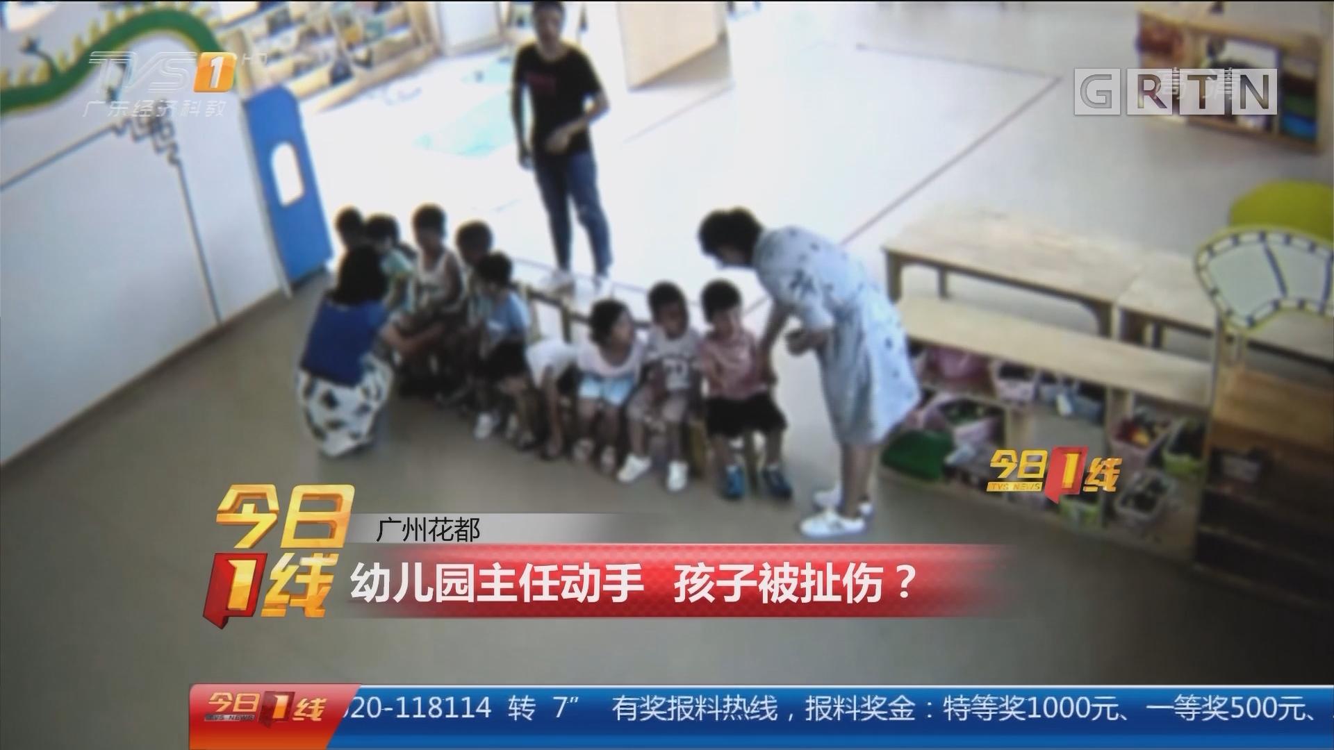 广州花都:幼儿园主任动手 孩子被扯伤?