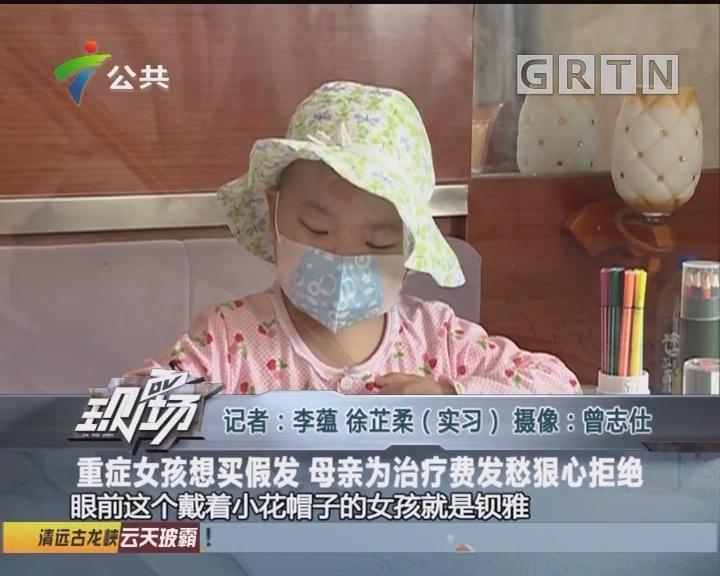 重症女孩想买假发 母亲为治疗费发愁狠心拒绝