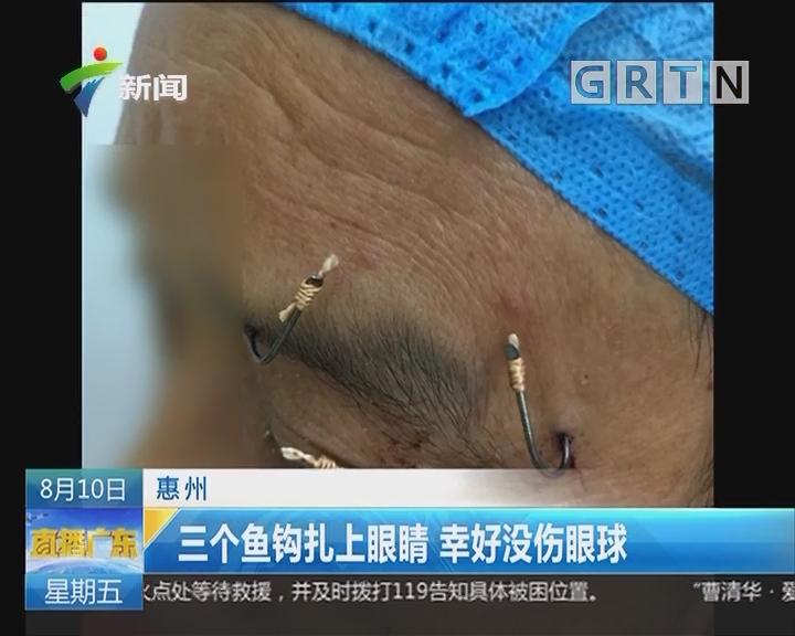 惠州:三个鱼钩扎上眼睛 幸好没伤眼球