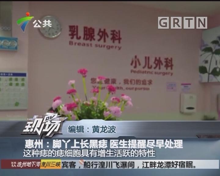 惠州:脚丫上长黑痣 医生提醒尽早处理
