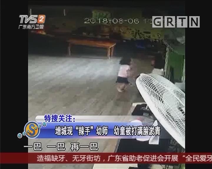 """增城现""""辣手""""幼师 幼童被打满脸淤青"""