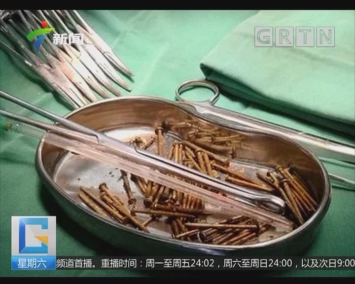 """湖南:小伙自称吃了""""钉子馅""""包子 医生取出87根铁钉"""
