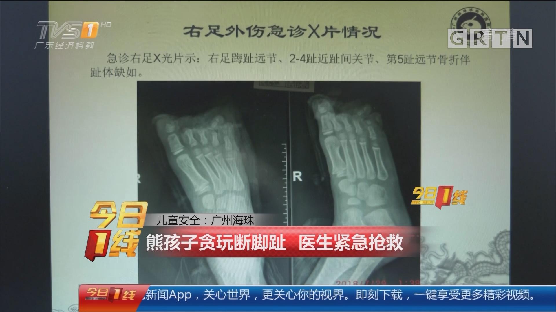 儿童安全:广州海珠 熊孩子贪玩断脚趾 医生紧急抢救