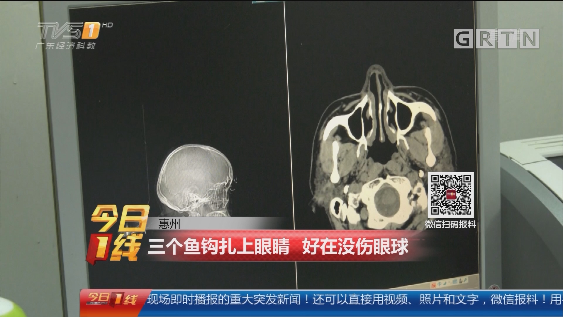 惠州:三个鱼钩扎上眼睛 好在没伤到眼球