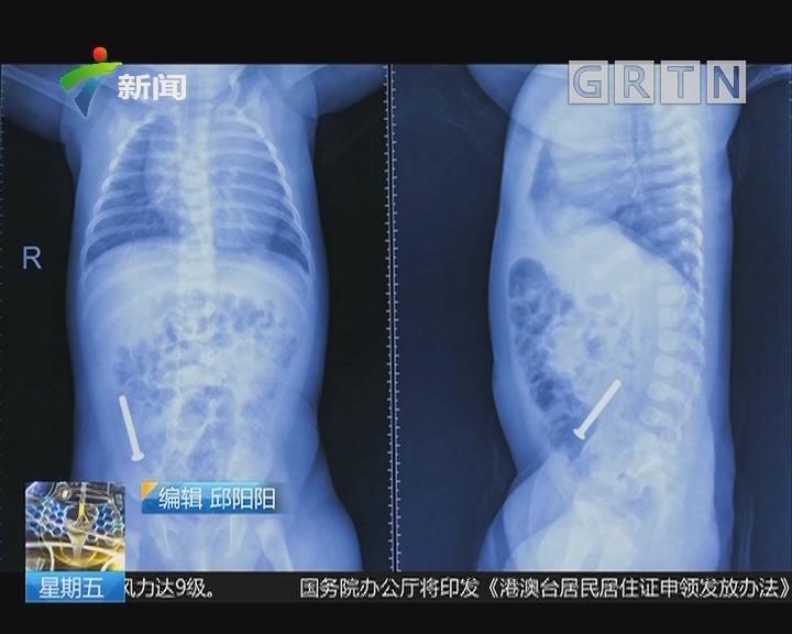 武汉:69天女婴 腹中惊现3厘米长螺丝钉