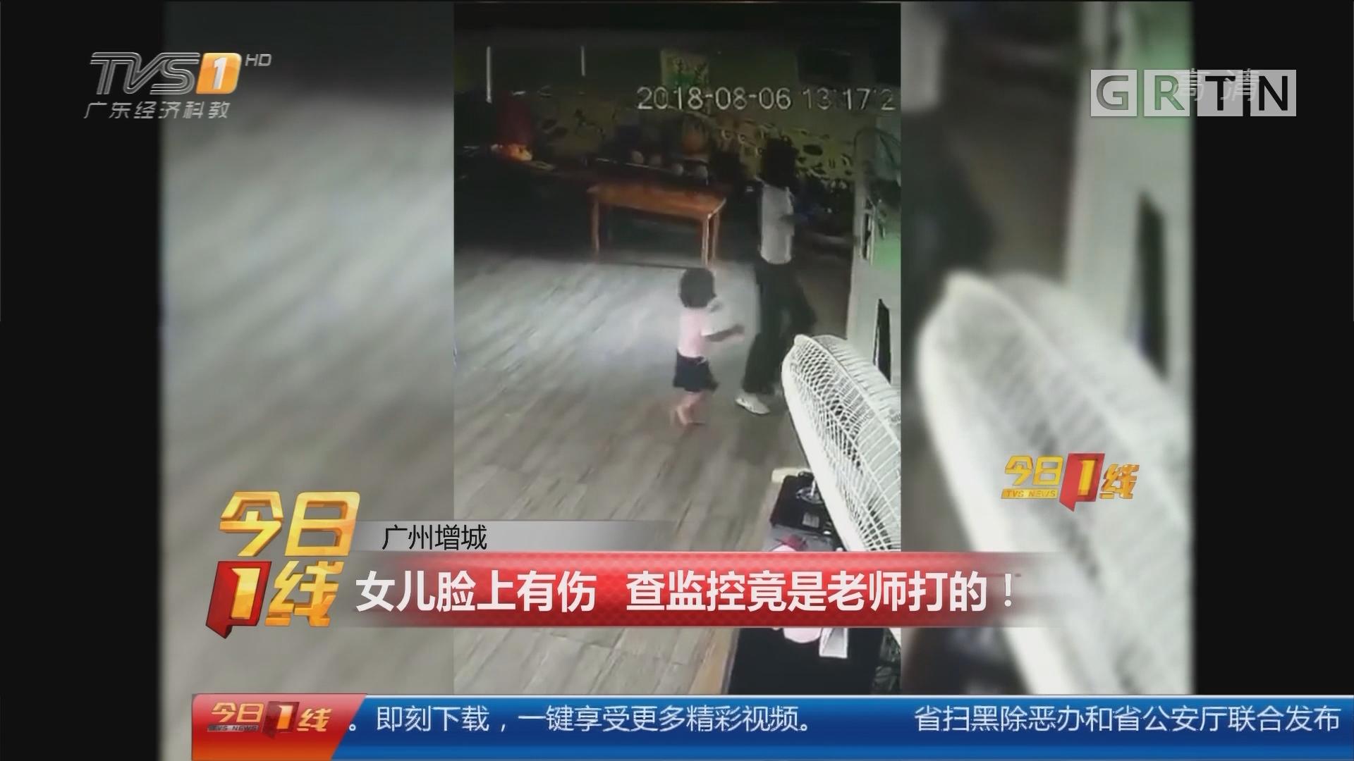 广州增城:女儿脸上有伤 查监控竟是老师打的!