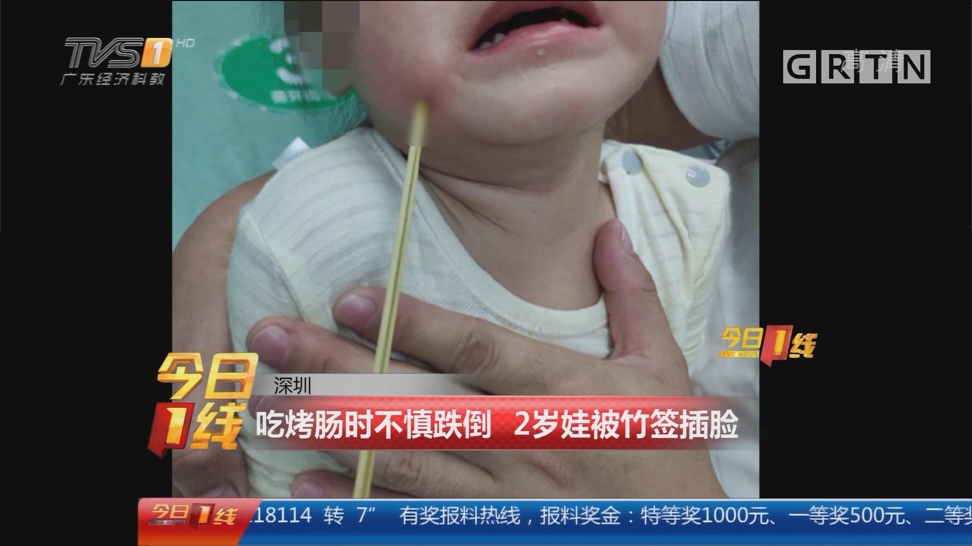 深圳:吃烤肠时不慎跌倒 2岁娃被竹签插脸