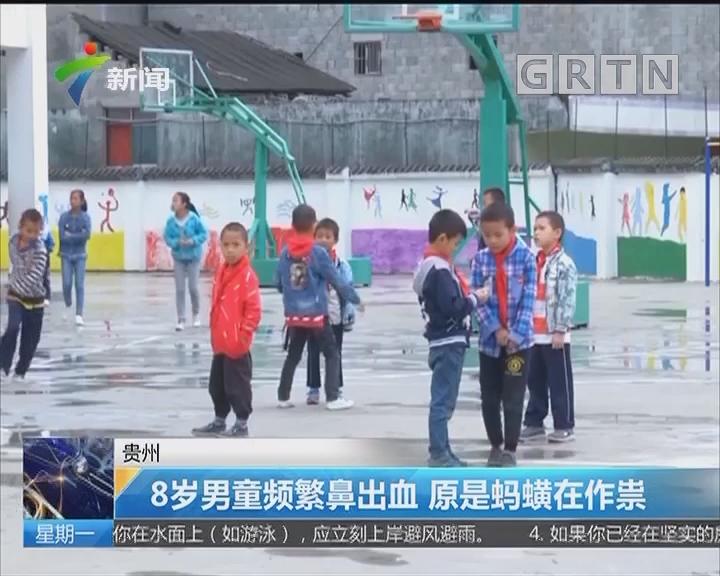贵州:8岁男童频繁鼻出血 原是蚂蟥在作祟
