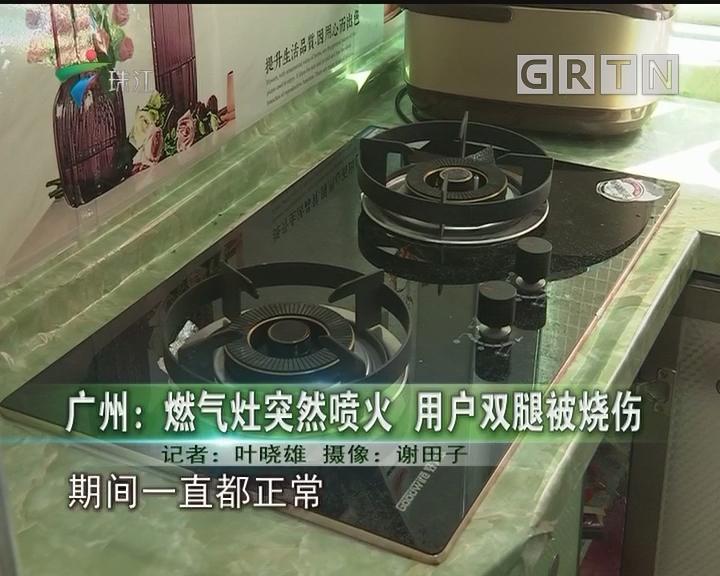 广州:燃气灶突然喷火 用户双腿被烧伤