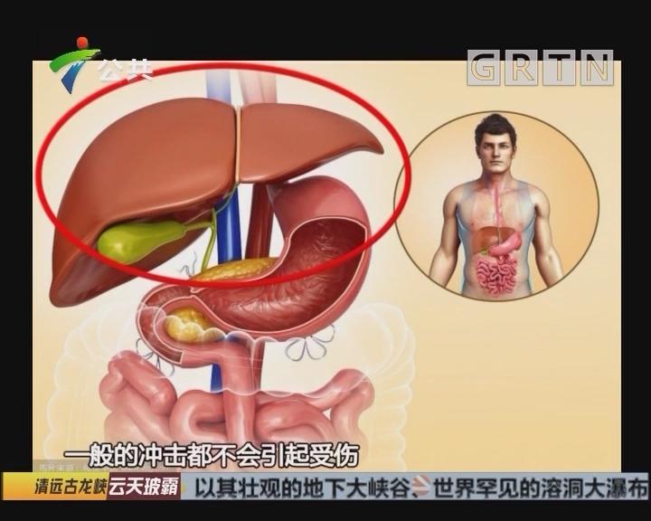 罕见!清远12岁女孩肝脏生在肚皮外